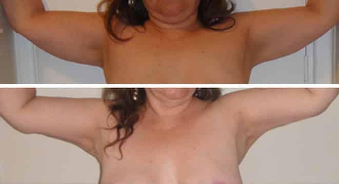 Dermolipectomia de brazos / Braquioplastia